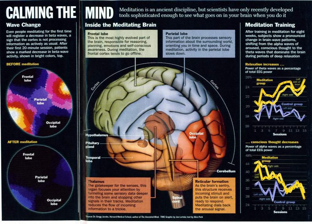 image-of-brain-when-doing-zikr